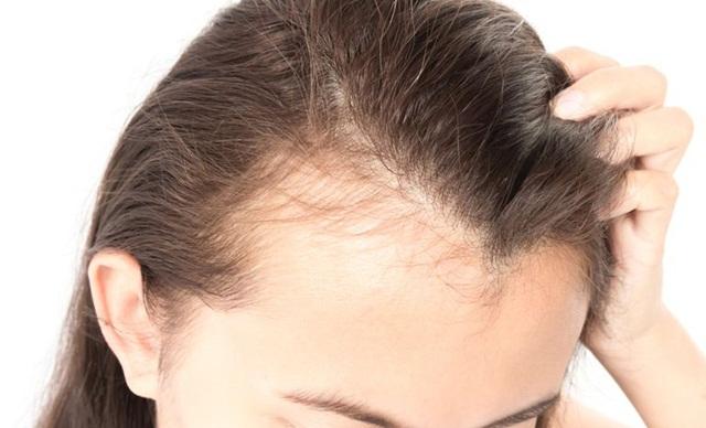 Rụng tóc đang là nỗi lo của rất nhiều người