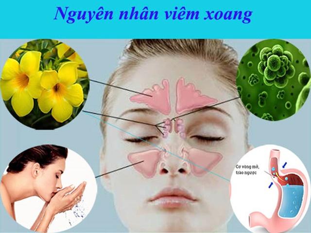 Đa phàn nguyên nhân do dị ứng gây nên viêm, nhiễm trùng khoang mũi