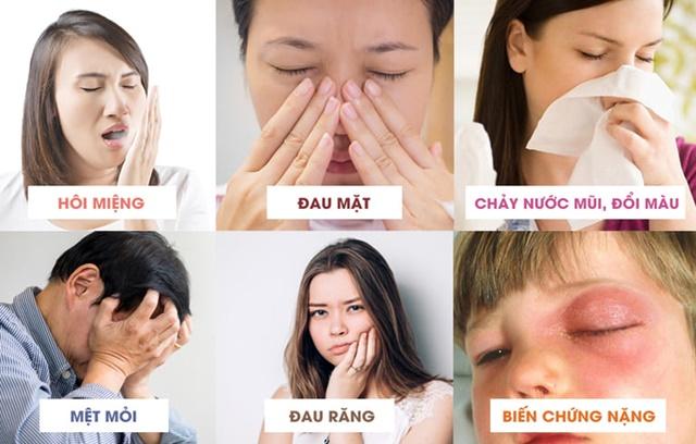 Những dấu hiệu của căn bệnh viêm xoang mãn tính