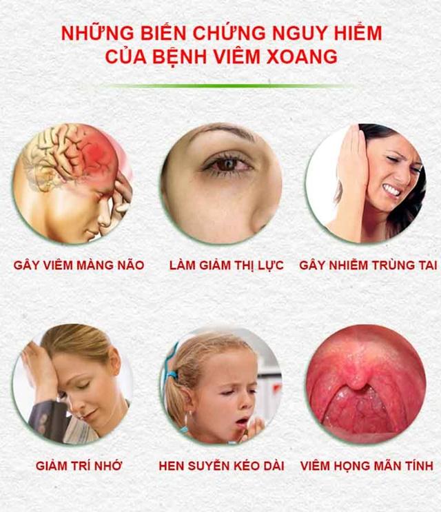 Những biến chứng nguy hiểm nếu không được điều trị kịp thời -viêm xoang mãn tính